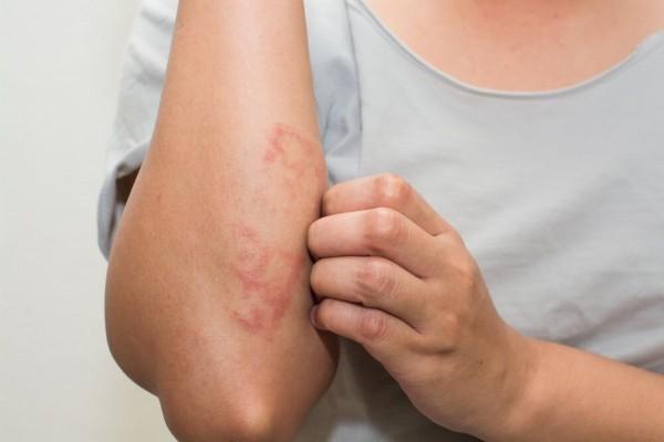 Waspada Terhadap Beberapa Makanan Sehat Resiko Memicu Alergi Lho!